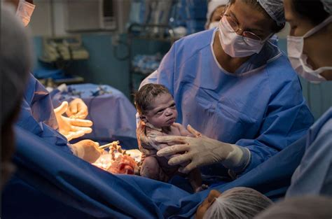 Photo shows moment newborn baby girl glares at doctor